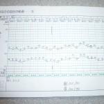 血圧手帳の写真。今までの血圧の推移。